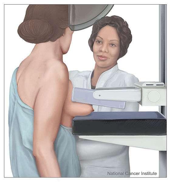 Comment prévenir le CANCER DU SEIN 1