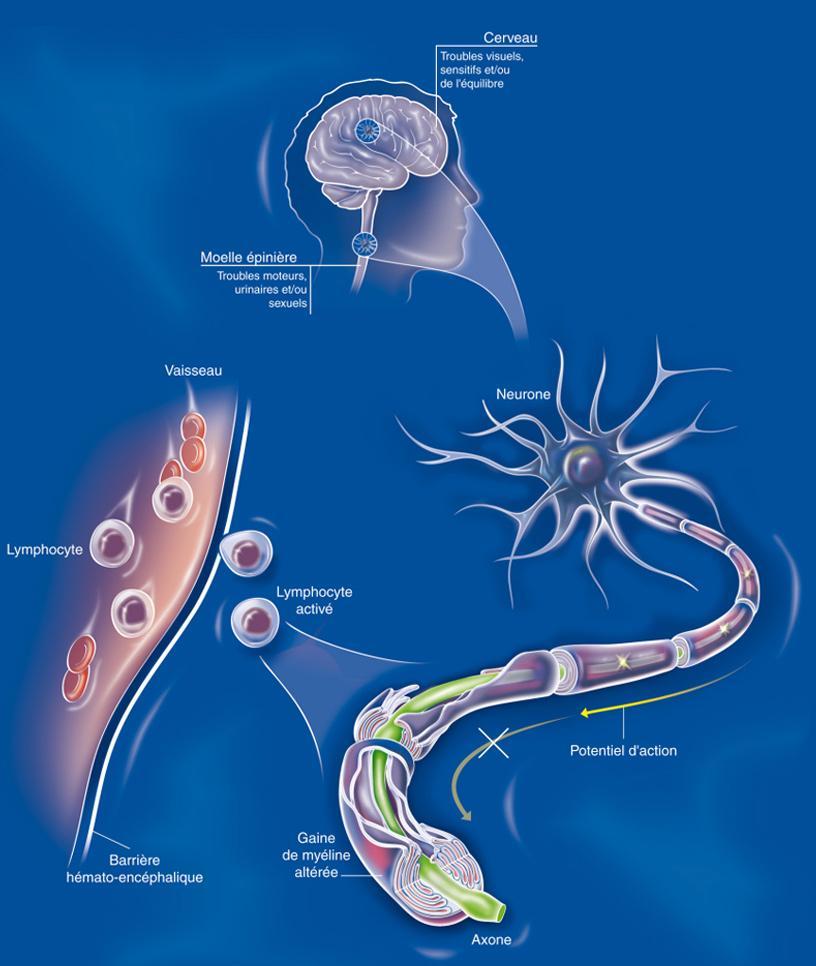 Sclérose en plaques : comment ça fonctionne