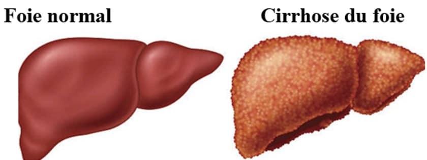 douleur au foie : est-ce que la cirrhose est douloureuse ?