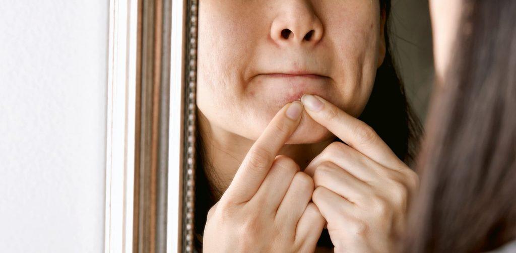 Aliments contre l'acné