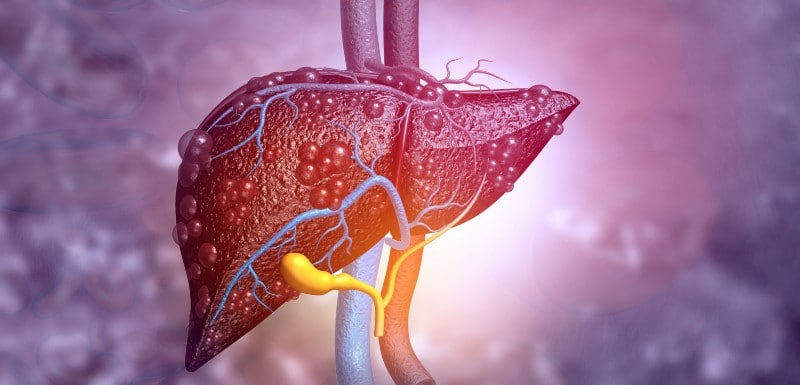 douleur au foie : est-ce que les hépatites sont à l'origine de la douleur ?