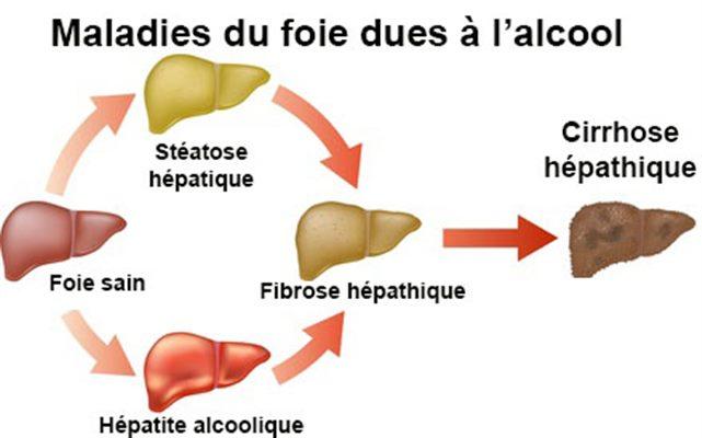 Stéatose hépatique alcoolique