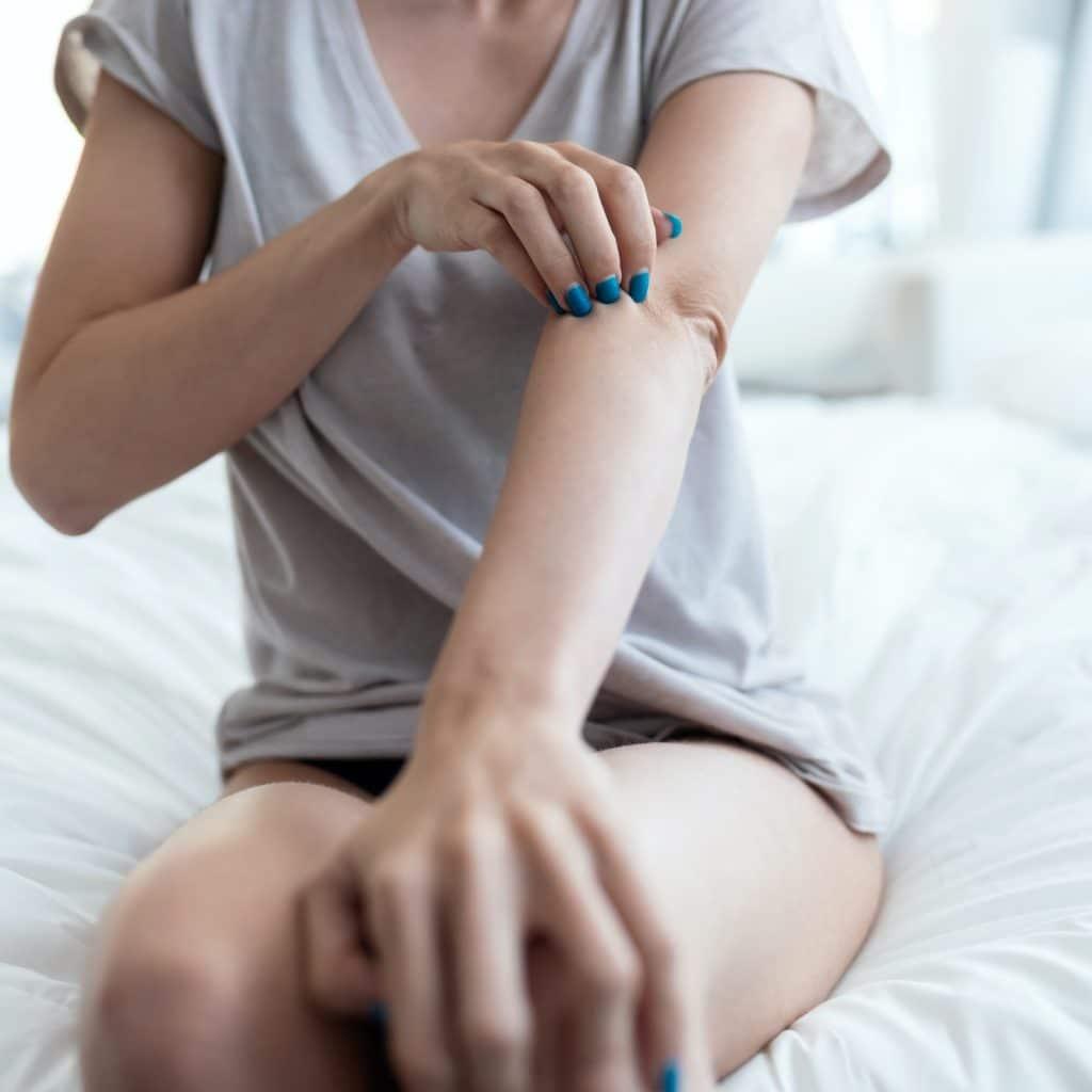 femme se gratte le bras à cause du psoriasis